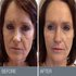 SERVICES: Non-surgical facelift in Toronto