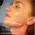 SERVICES: Dermal Lip fillers in Watford city